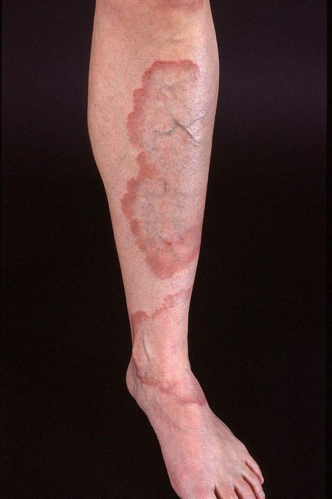 Granuloma u člověka