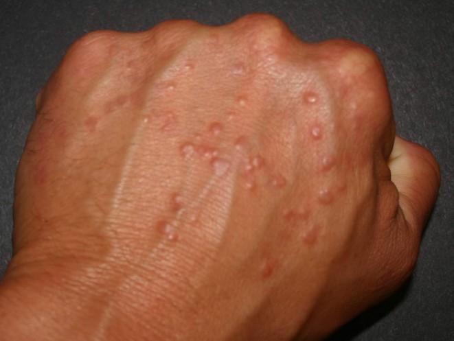 Granuloma na lidské ruce